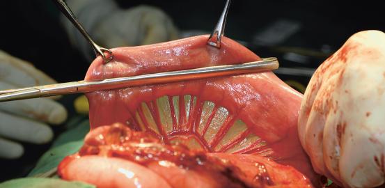Un nouvel organe dans le corps humain?