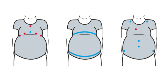 "ObeSense: an ""intelligent"" T-shirt to fight obesity"